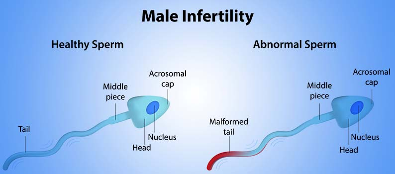 Treating Male Infertility – It Is Possible